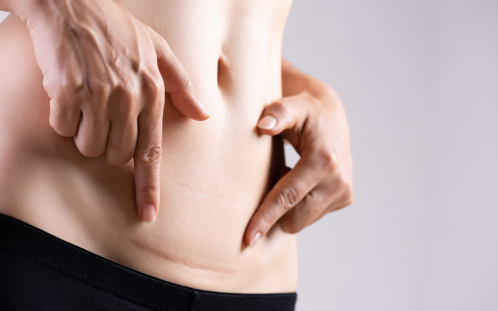 Keisarileikkauksesta toipuminen ja arven parantuminen vie noin kuukauden.