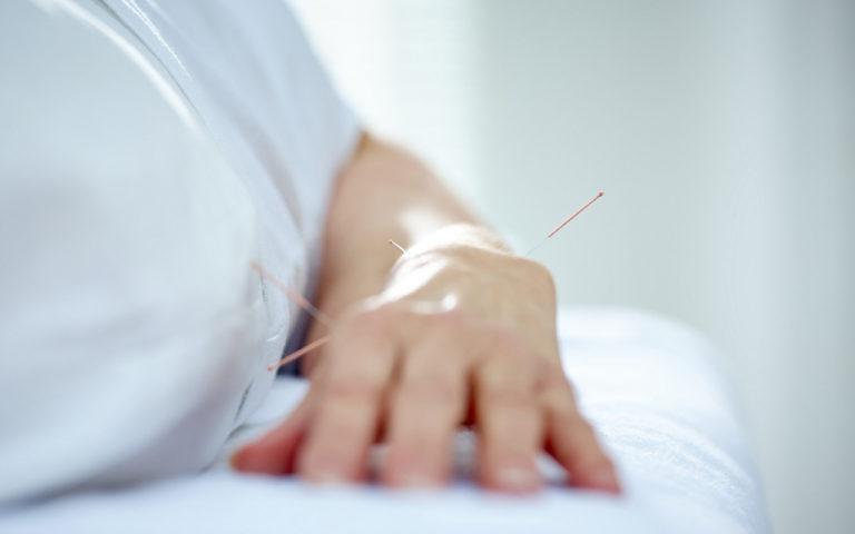 Synnytyksessä käytettävät yleisimmät akupisteet sijaitsevat kämmenissä, jaloissa ja päässä.