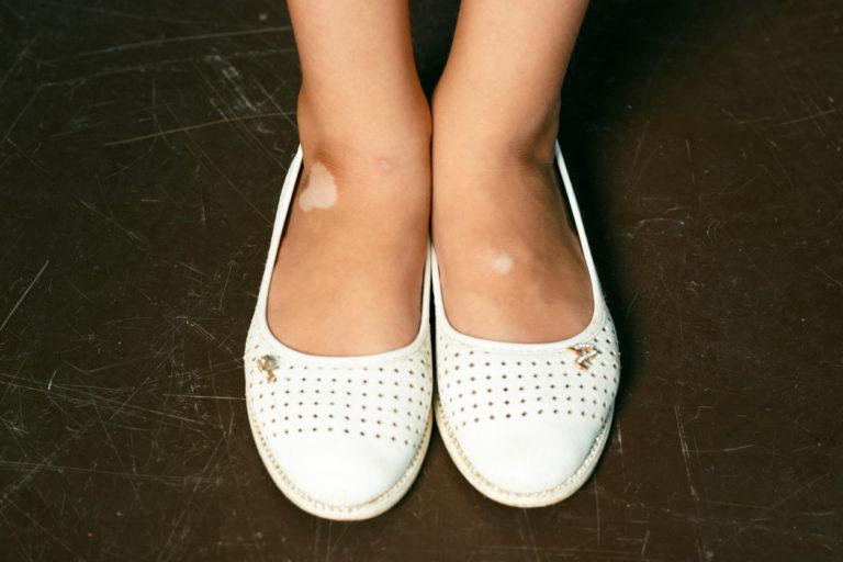 Lapsen vitiligo ei haalistu iän myötä.